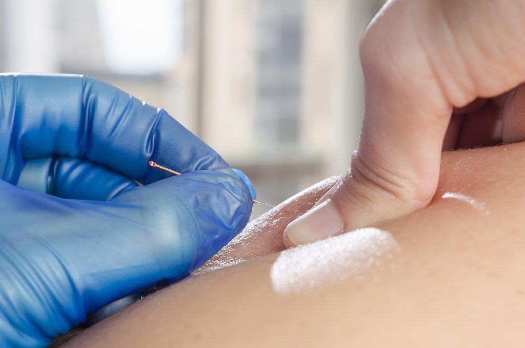 Therapist in Dry Needling Session